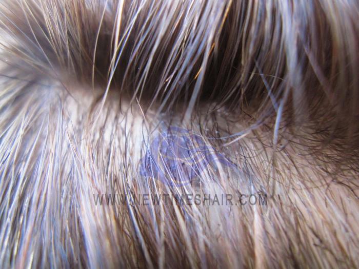 Haarsystem